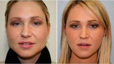 Photo of Как похудеть в лице и щеках