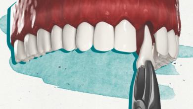 Photo of Как проходит имплантация по протоколу «Зубы за 1 день» |
