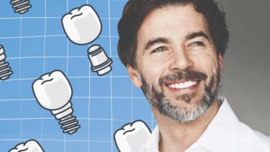 Photo of 6 мифов об имплантации зубов, в которые давно пора перестать верить |